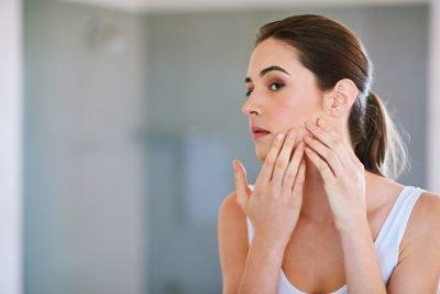 adult-acne-e1545406982248.jpg